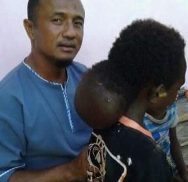 Tawakal Kamakaula, bocah 8 tahun yang menderita kanker kronis di bagian belakang kepala
