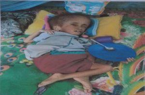 Riky Rolland Kalasuat yang terbaring lemas di tempat tidur sambil memegang piring dan sendoknya